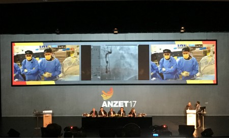 Conference stage with surgeons pictured on TV screens overhead